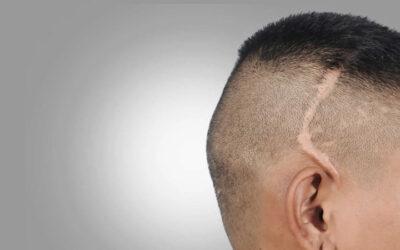 Scars Hair Transplantation