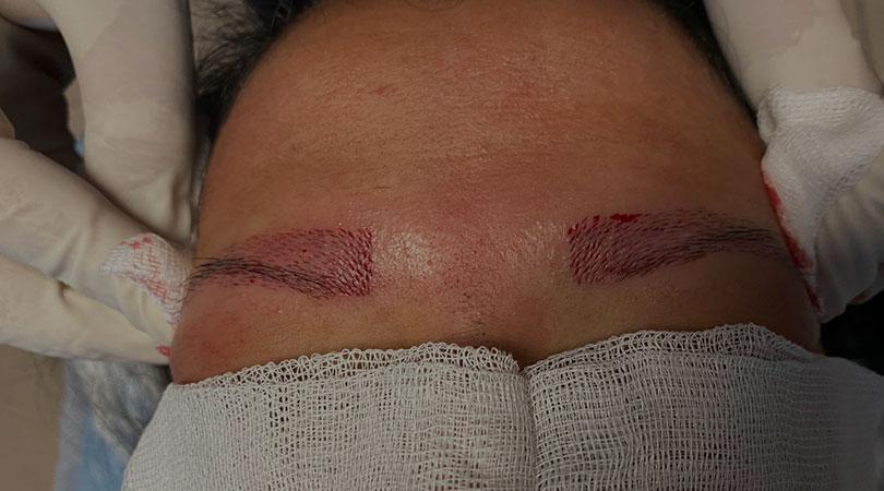 Eyebrow Transplantation