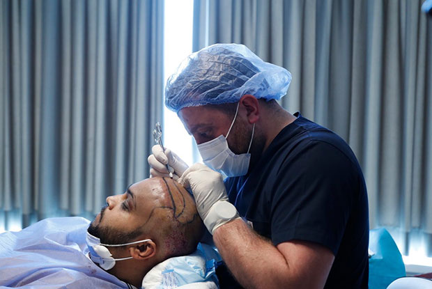 FUE Hair Transplant Open The Channels