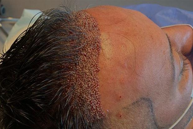 Hair Transplant Unshaven