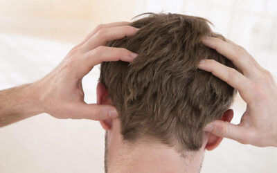 How does itching go away after hair transplantation?