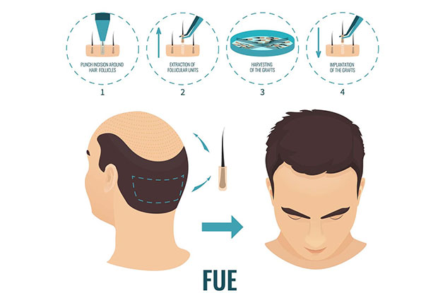 How is the FUE Hair Transplant performed?