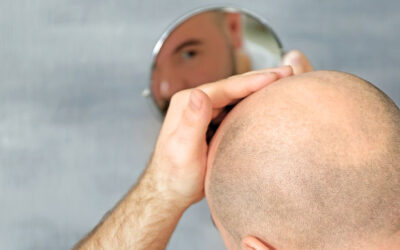 Is Everyone suitable for Hair Transplantation?