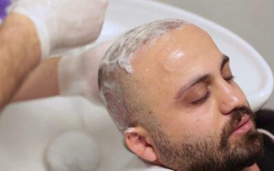 Post Operative Hair Wash