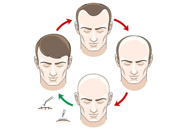 What is the FUE Hair Transplant?