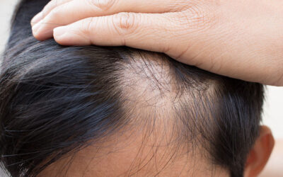 What Should I Do To Prevent Hair Loss?