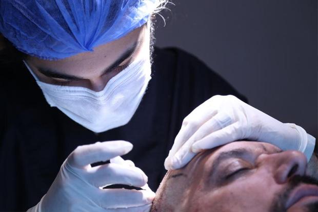 Advantages of DHI hair transplantation