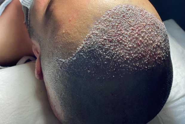 Advantages of FUE hair transplantation with sapphire