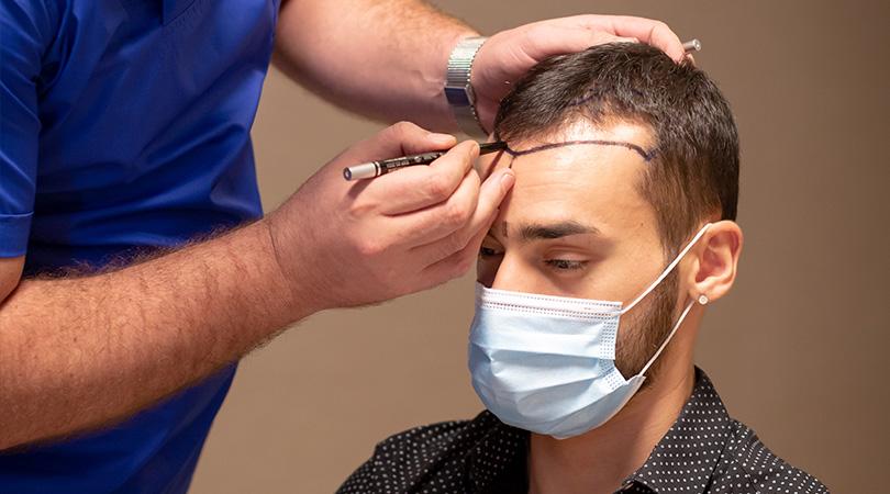 What is hair transplantation