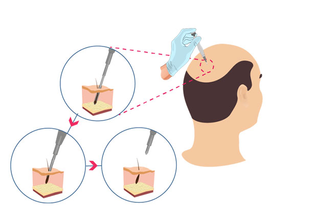 What is DHI hair transplantation