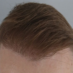 After the hair transplant operation
