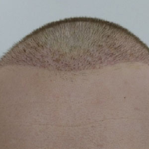 During the hair transplant operation
