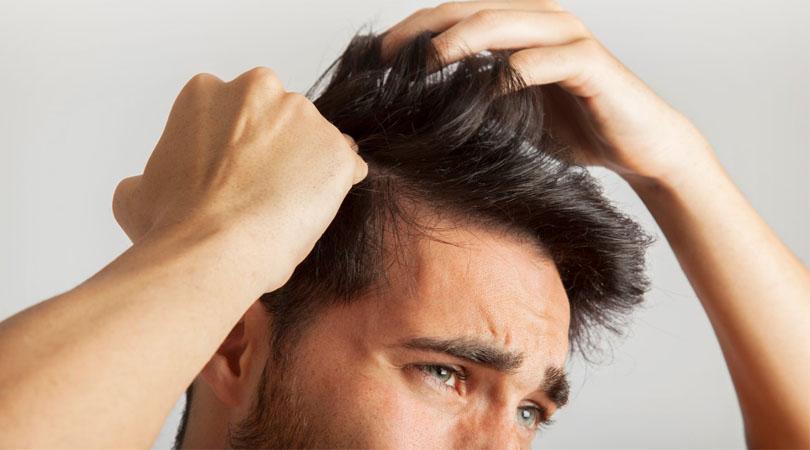 Quelle est la meilleure méthode de greffe de cheveux?