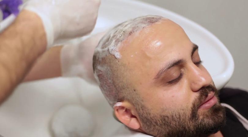 Comment se laver après une greffe de cheveux?