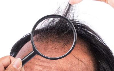 Tout le monde est-il un candidat approprié pour la greffe de cheveux?
