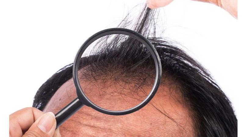 Saç Ekim Öncesi Kurallar