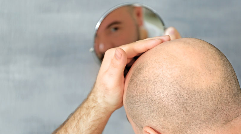 Saç Ekimi Sonrası İyileşme Süresi Nasıldır?