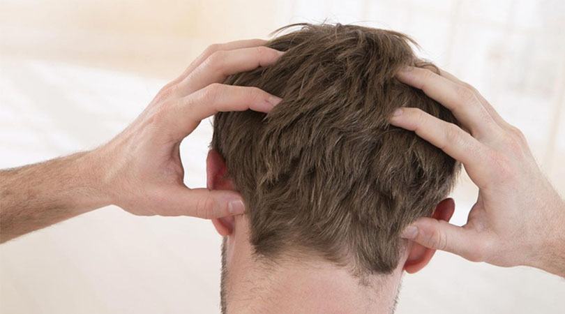 Saç Ekimi Sonrası Kaşıntı Nasıl Geçer?
