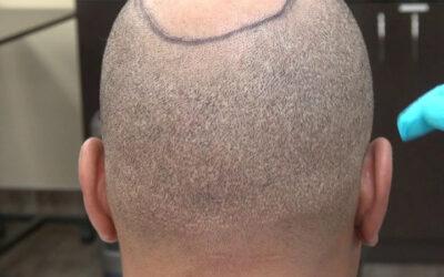 Saç Ekiminde Enseden Alınan Saç Tekrar Çıkıyor mu?