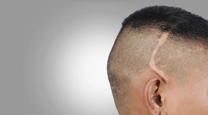 Saç Ekimiyle Scar Tedavisi