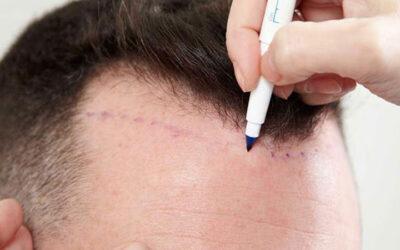 Saç Ekimi Hastaları Gelmeden Önce Neler Yapmalıdır?