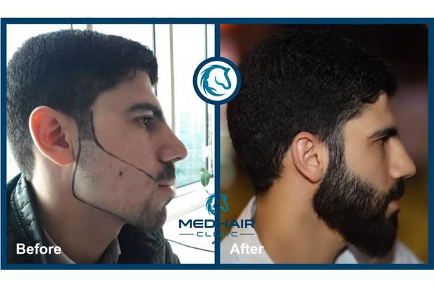 Erkekler için sakal yüzdeki bir aksesuar gibidir