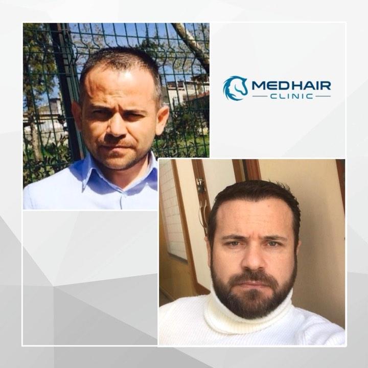 Saç Ekimi Öncesi ve Sonrası